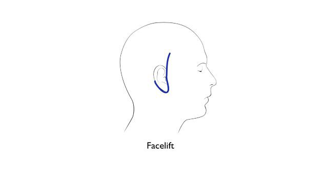 Facelift incision diagram