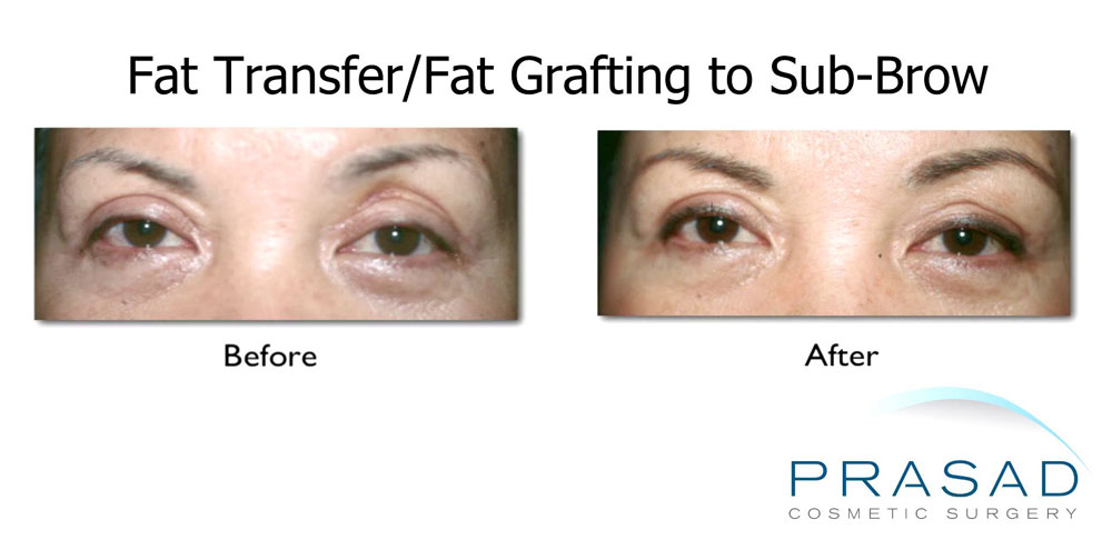 before and after fat transfer to sub-brow to address hollowing
