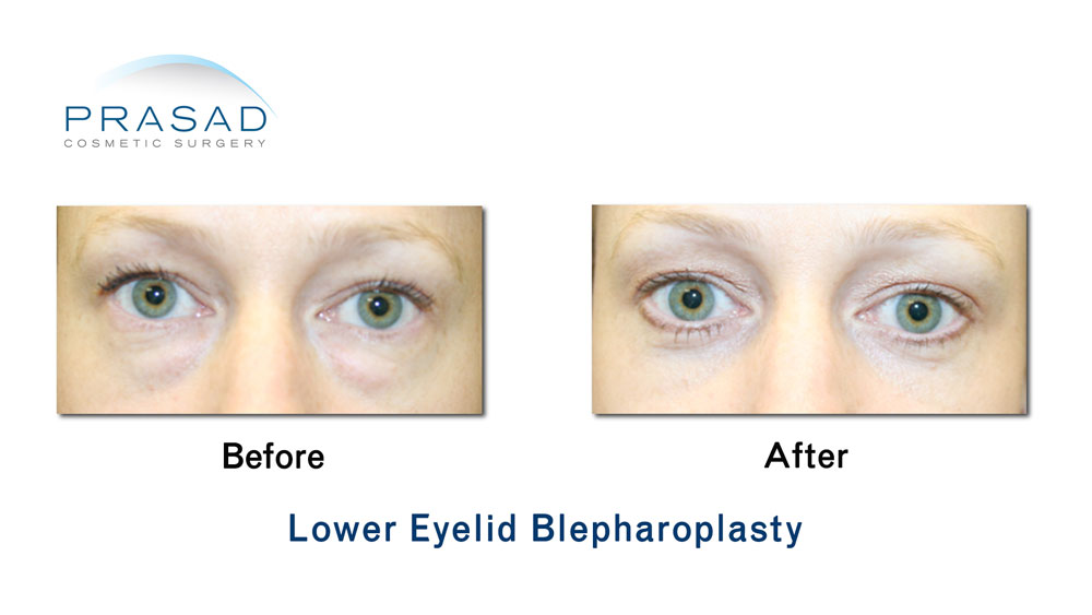 before and after cosmetic surgery for eye bags performed by Dr Amiya Prasad, New York