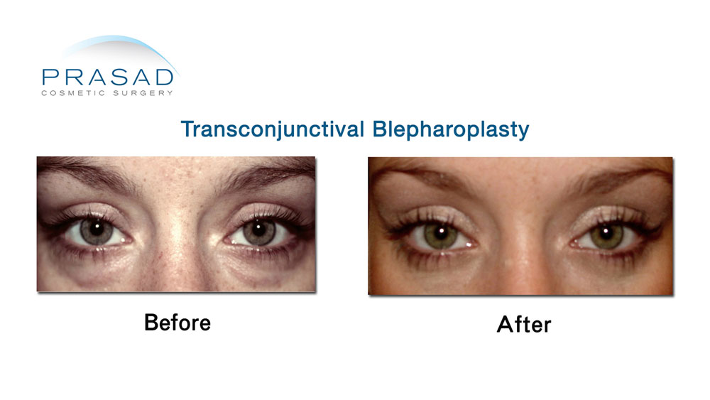Before and After lower eyelid surgery using Transconjunctival Blepharoplasty technique - female patient