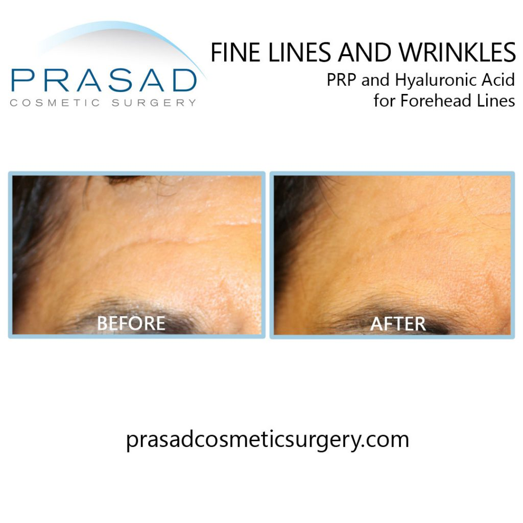 Fine lines and wrinkles on the forehead before and after PRP and cosmetic fillers treatment