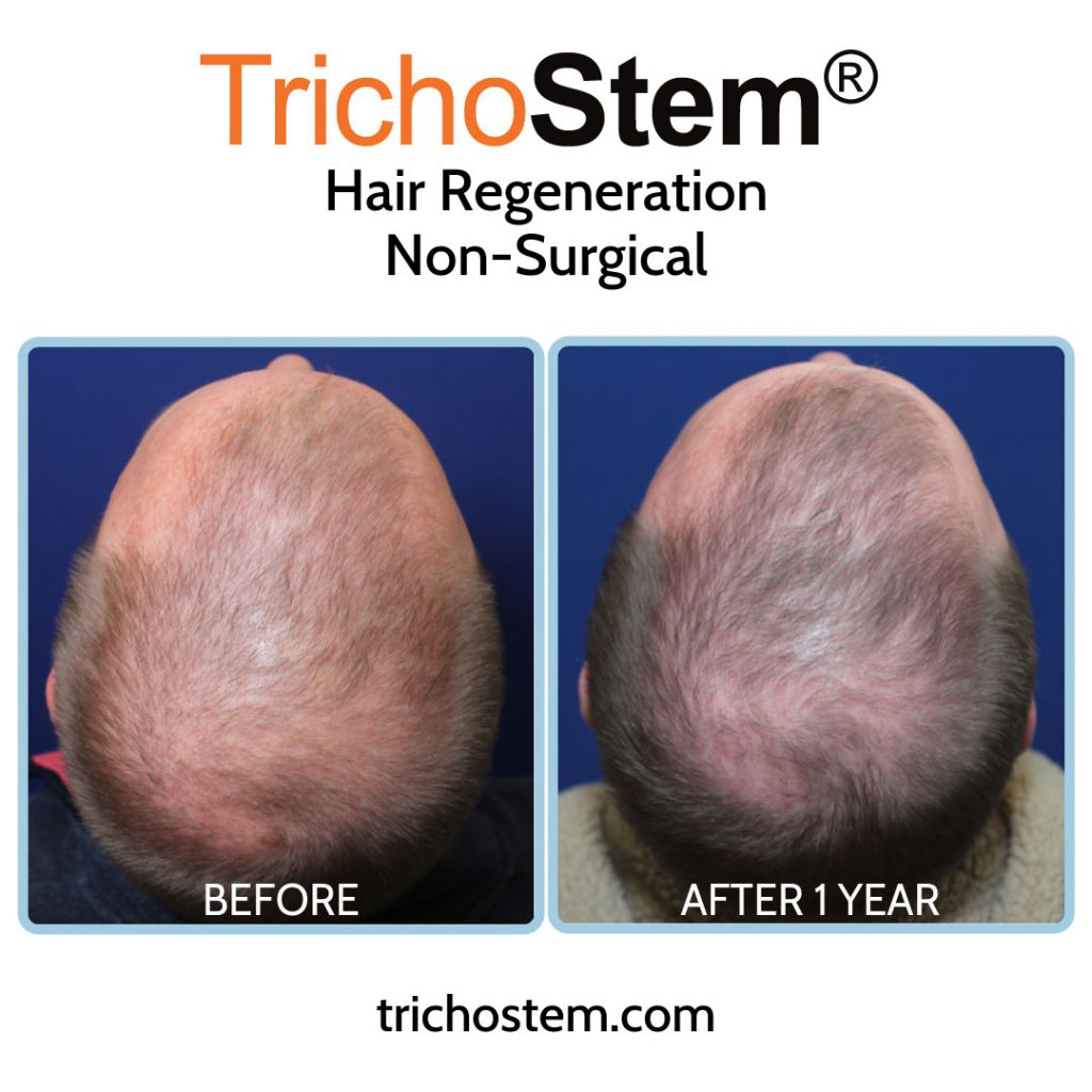 Before and 1 year after after hair regeneration treatment on male patient