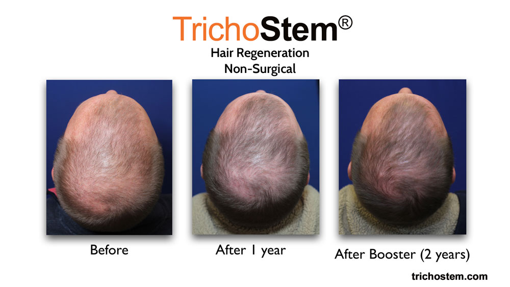 Before, 1 year after, and 2 years after hair regeneration treatment on male patient