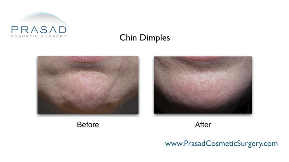 Chin dimpling treated with Botox® by Dr. Amiya Prasad