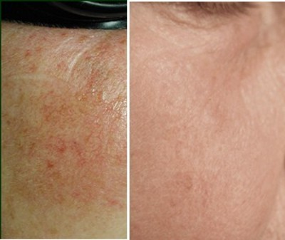 before and after IPL Skin Treatment
