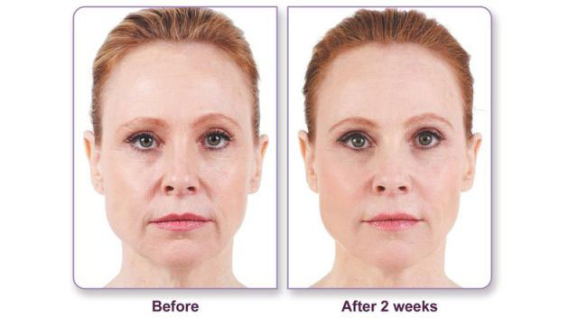 Before and after Juvederm filler treatment for vertical lip lines