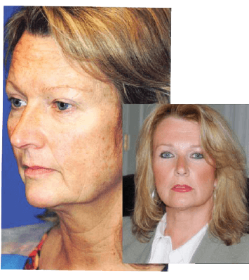 Facelift patient before and after results