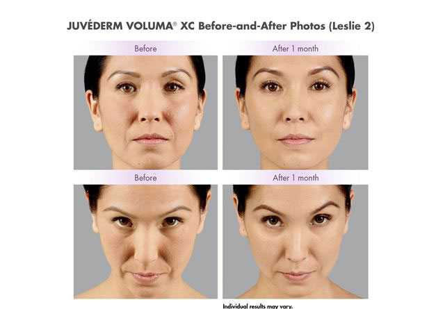 female model before and after Juvederm voluma 1 month treatment