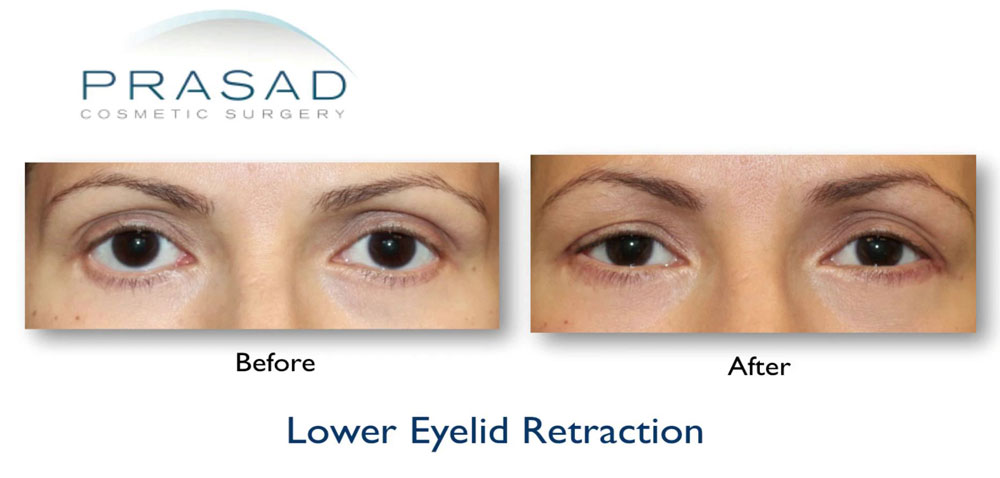 Before and after Lower Eyelid retraction surgery - female patient