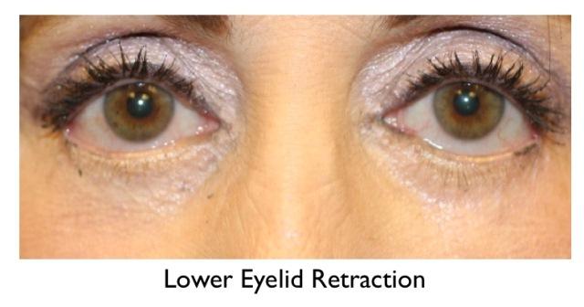 lower eyelid retraction example - older female
