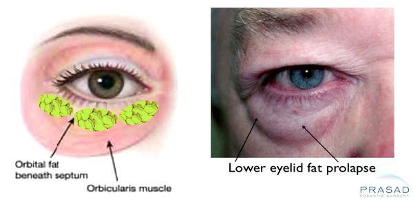 Lower eyelid fat prolapse illustration