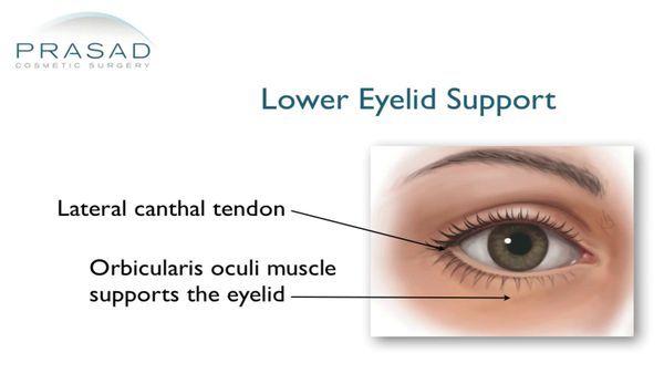 lower eyelid support illustration