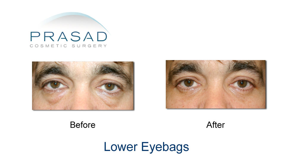 before and after transconjunctival blepharoplasty on male patient
