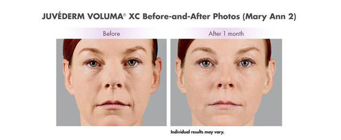juvederm voluma before and 1 month after treatment