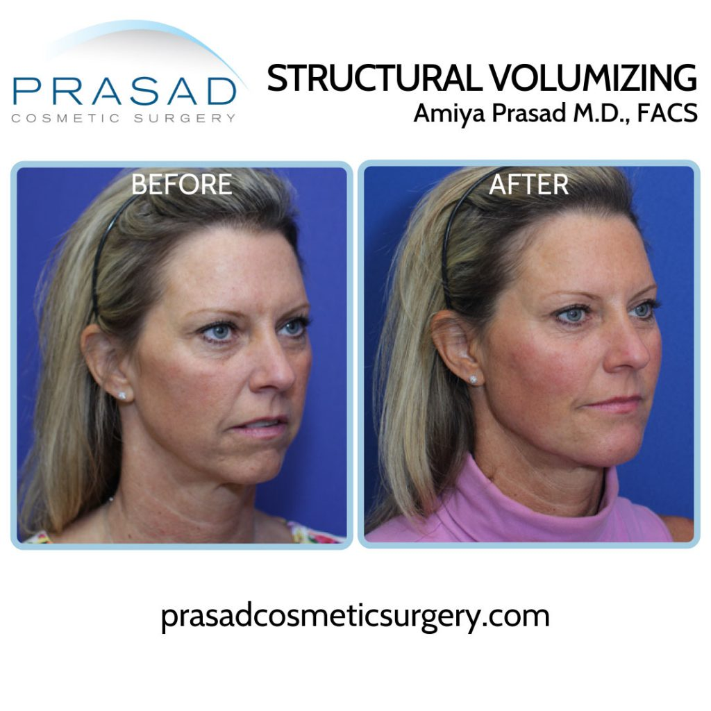 Addressing under eye hollowing by treating volume loss in the cheeks before and after results