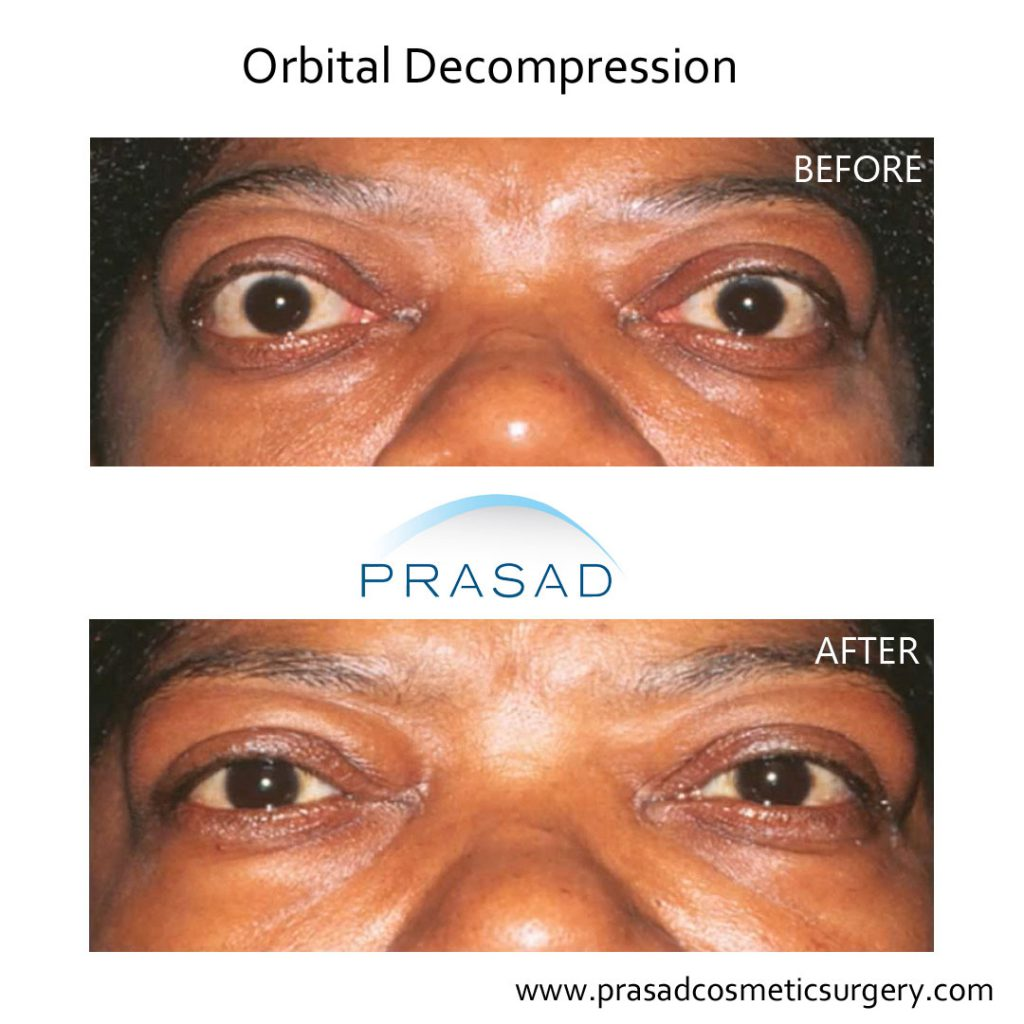 before and after orbital decompression surgery