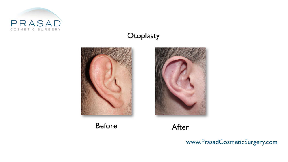 Otoplasty before and after surgery performed by Dr Amiya Prasad, right ear view