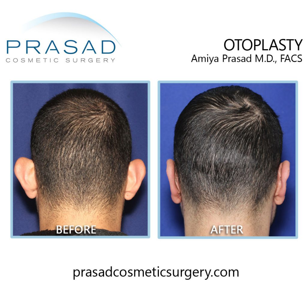 ear surgery before and after - male patient back view