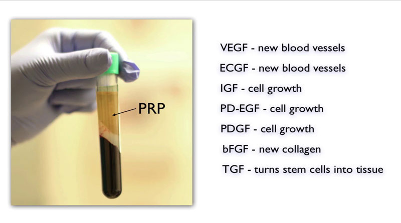 platelet rich plasma growth factors