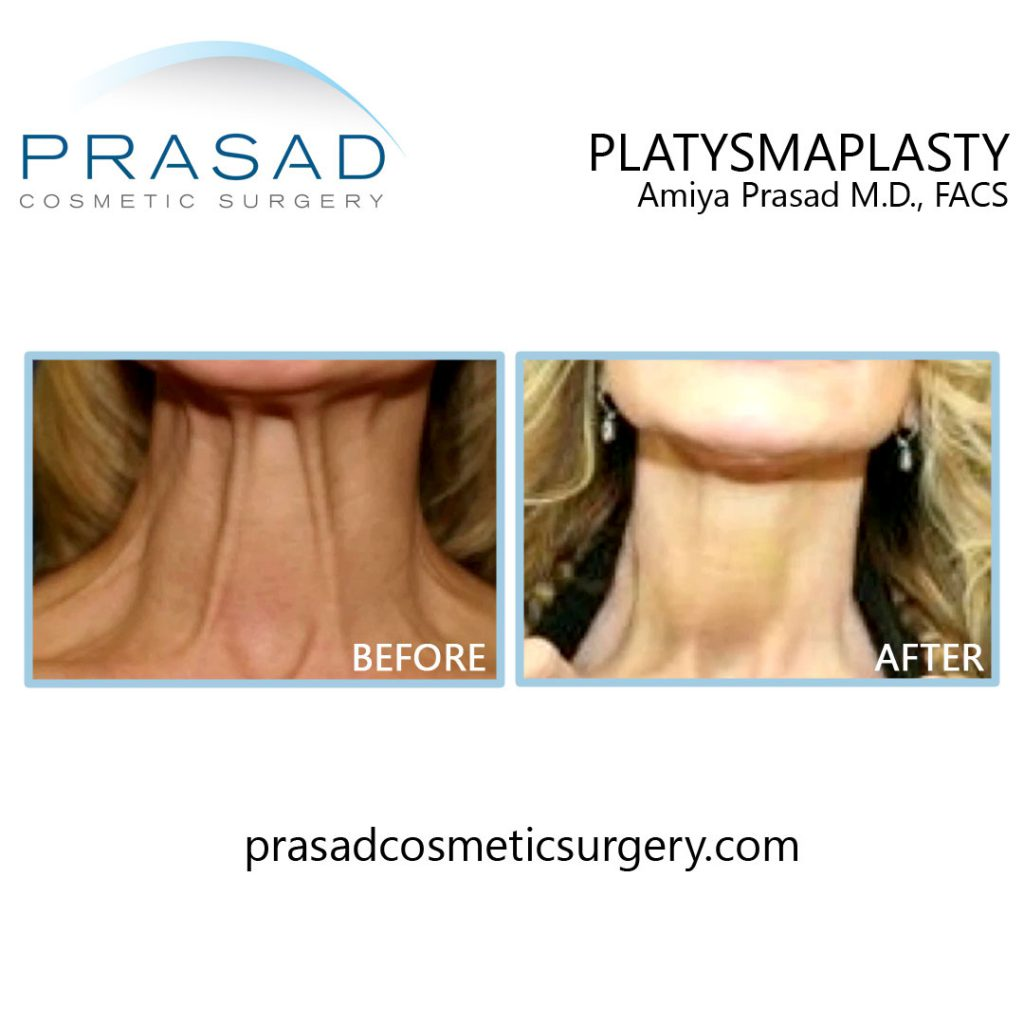 Before and after Platysmaplasty