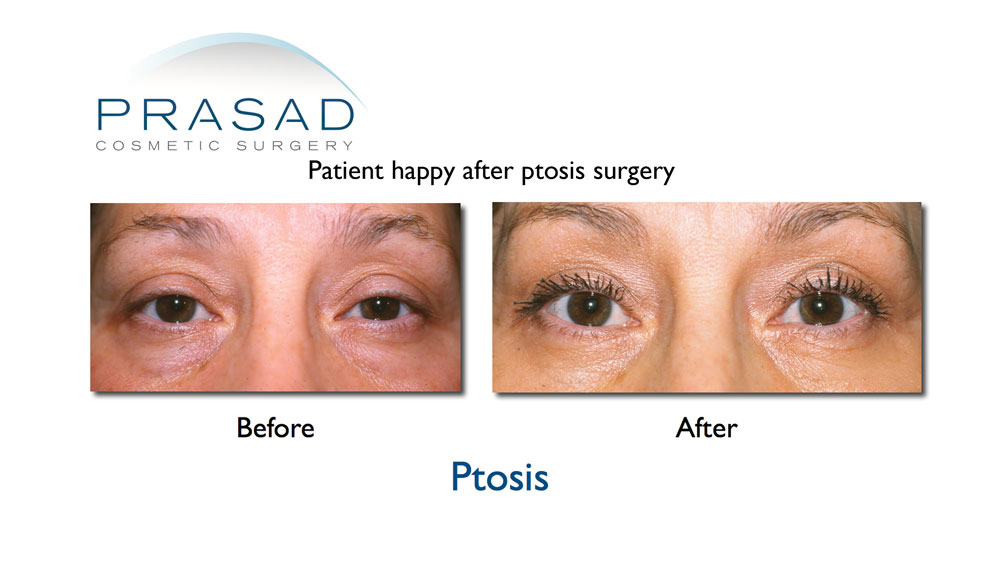 blepharoplasty patient who needed ptosis surgery before and after results