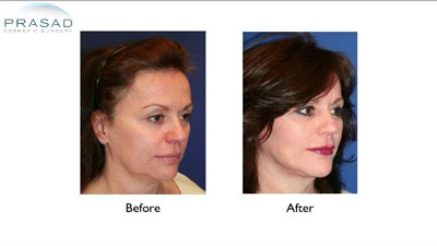 Short Scar Facelift patient Before and After results - three-quarter view