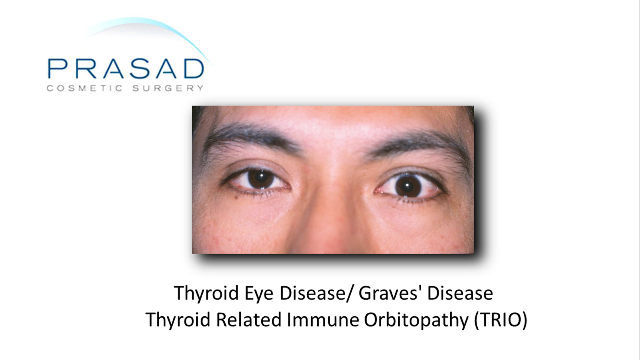 Asian Male in the inflammatory stage of thyroid eye disease in his left eye