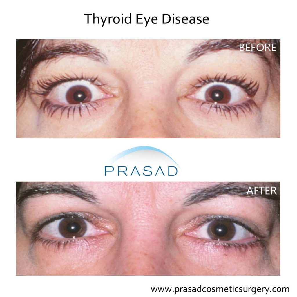 eyelid retraction surgery for thyroid eye disease before and after surgery