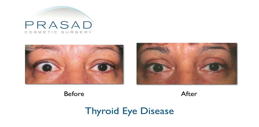 Thyroid eye disease in middle aged female before and after corrective surgery