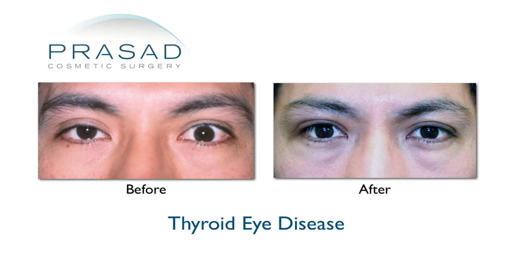 male with Thyroid Eye Disease before and after correction surgery by Dr. Prasad