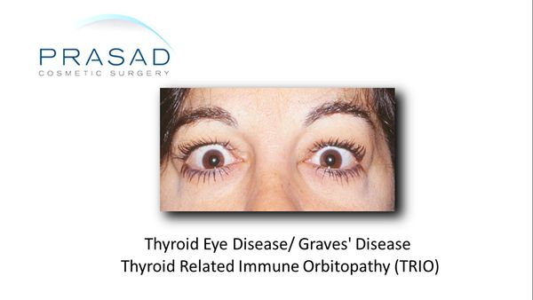 Female with thyroid eye disease in the inflammatory stage