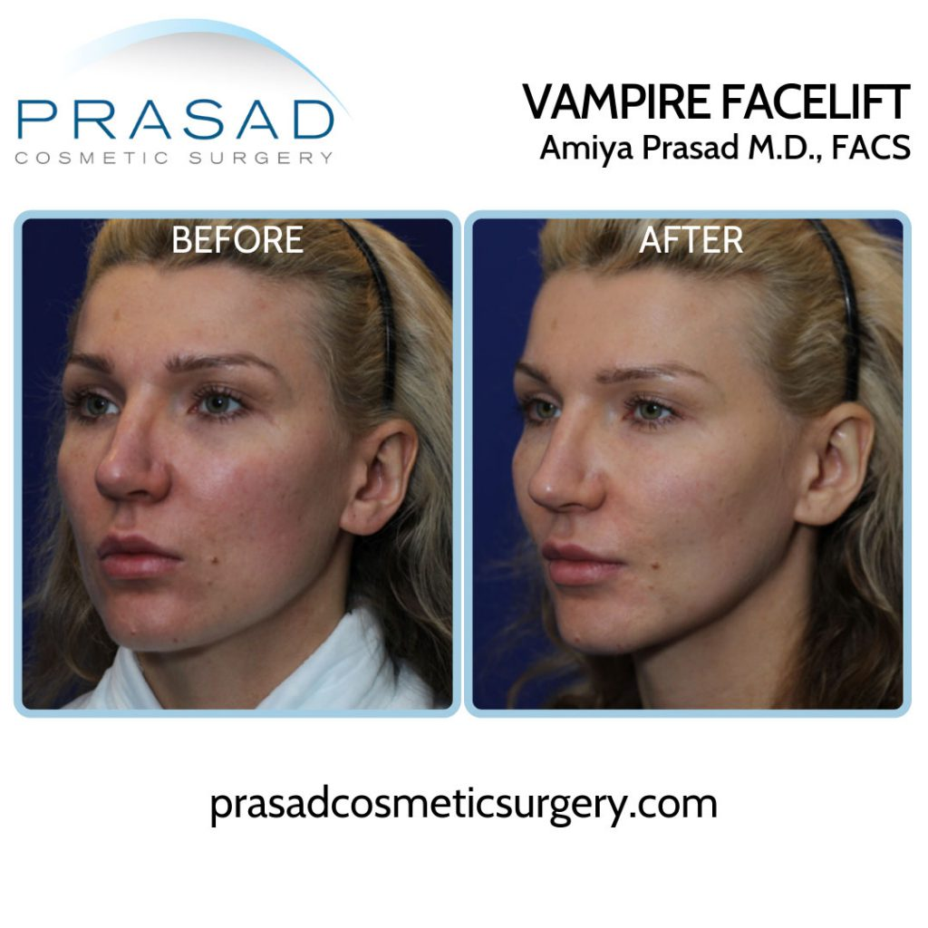 Female patient before and after vampire facelift