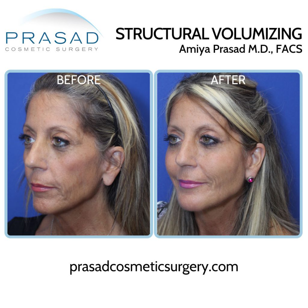 before and after liquid facelift - female patient three-quarter view