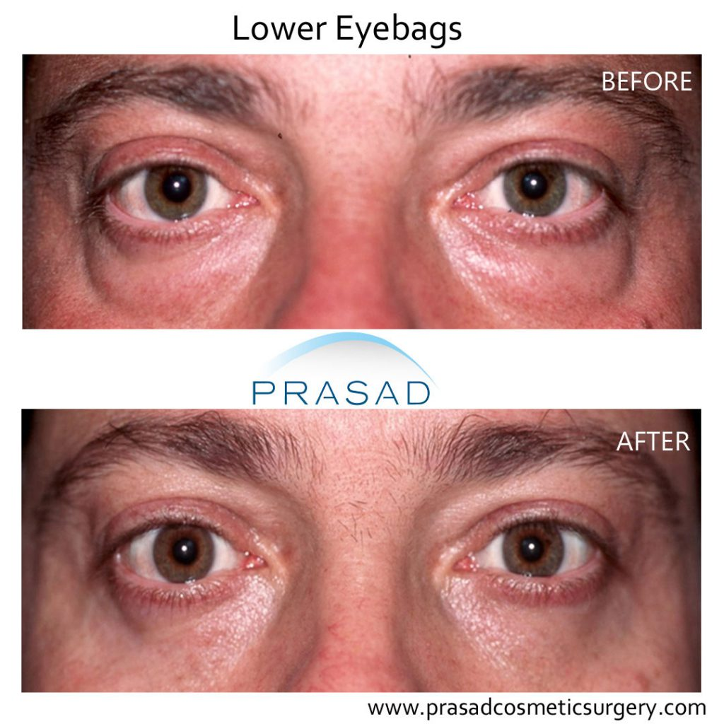 Lower Eye bags Before and After surgery - male patient