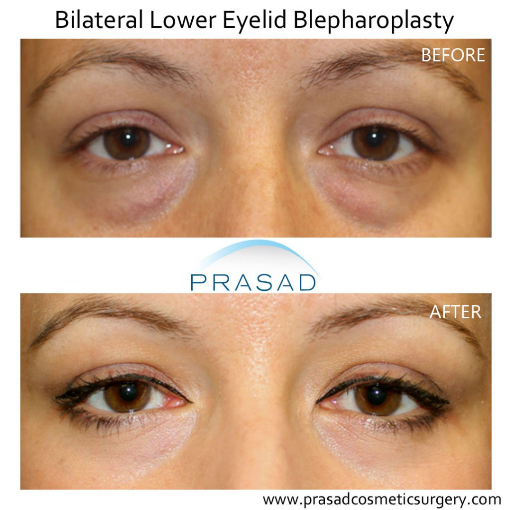 before and after lower eyelid blepharoplasty female patient