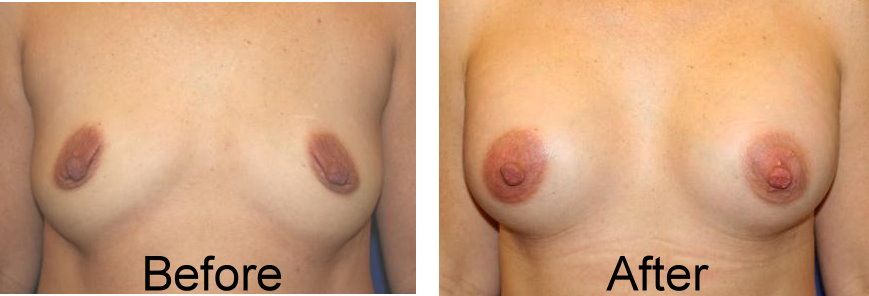 before and after underarm breast augmentation of 40 yrs old woman