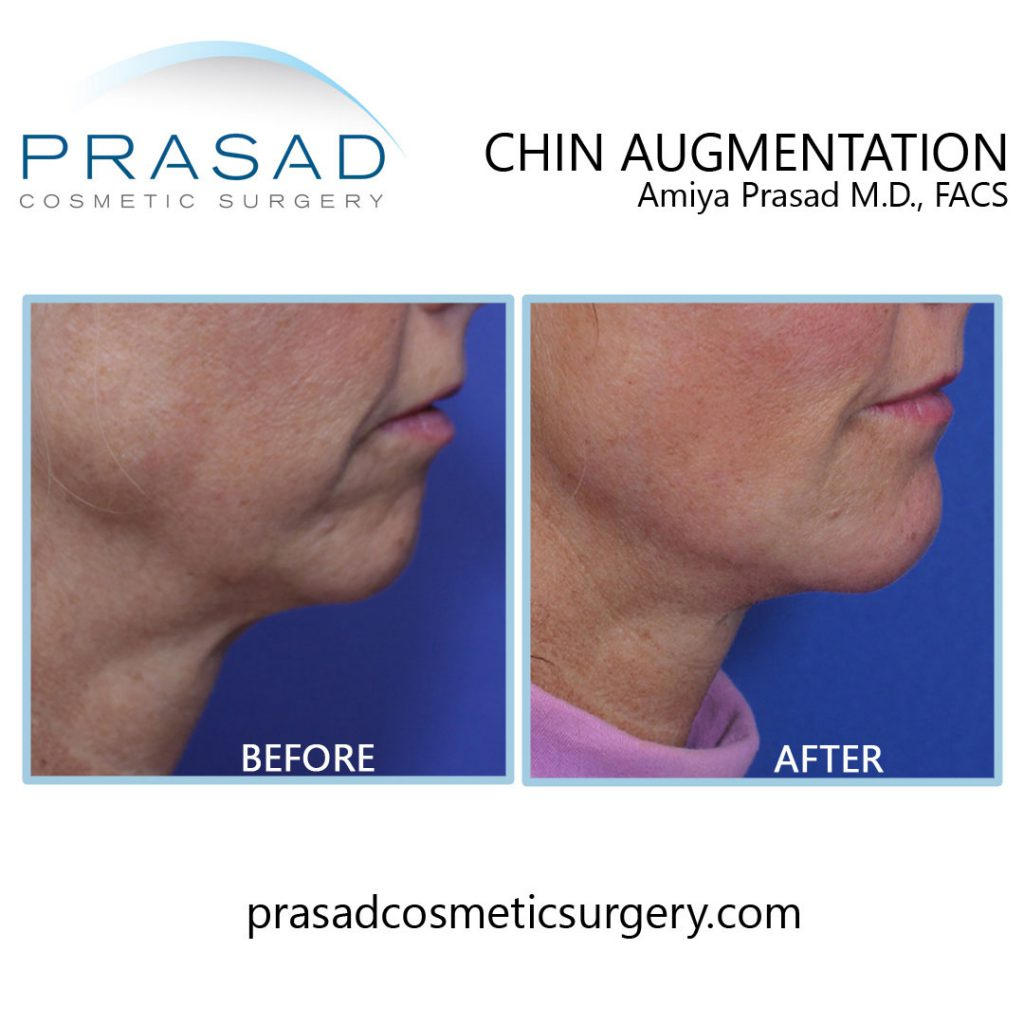 chin projection filler before and after results