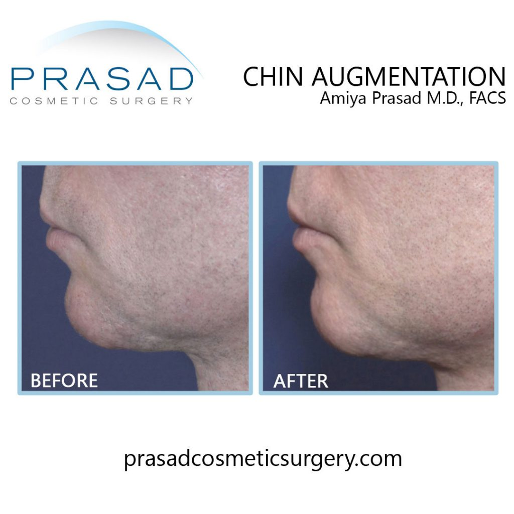 before and after chin augmentation filler by Dr Amiya Prasad