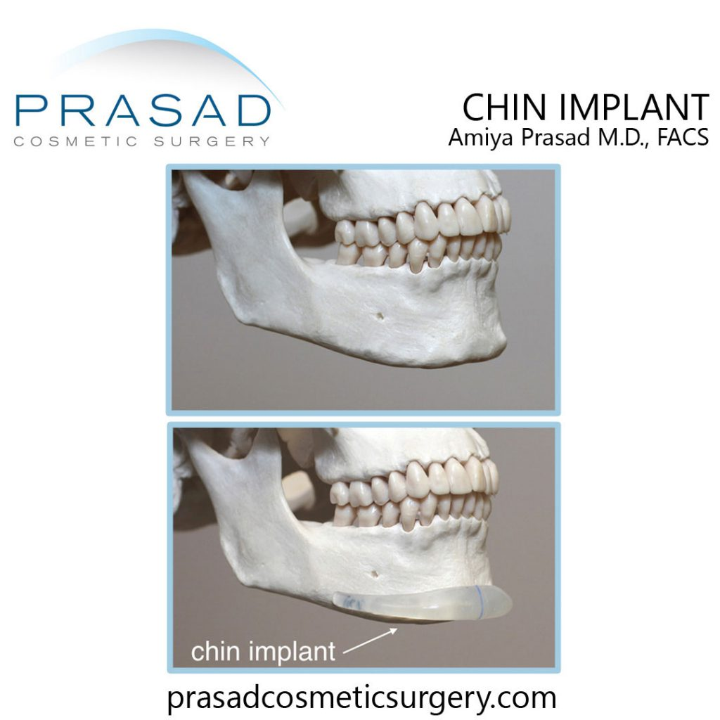 silicone chin implant anatomical placement illustration