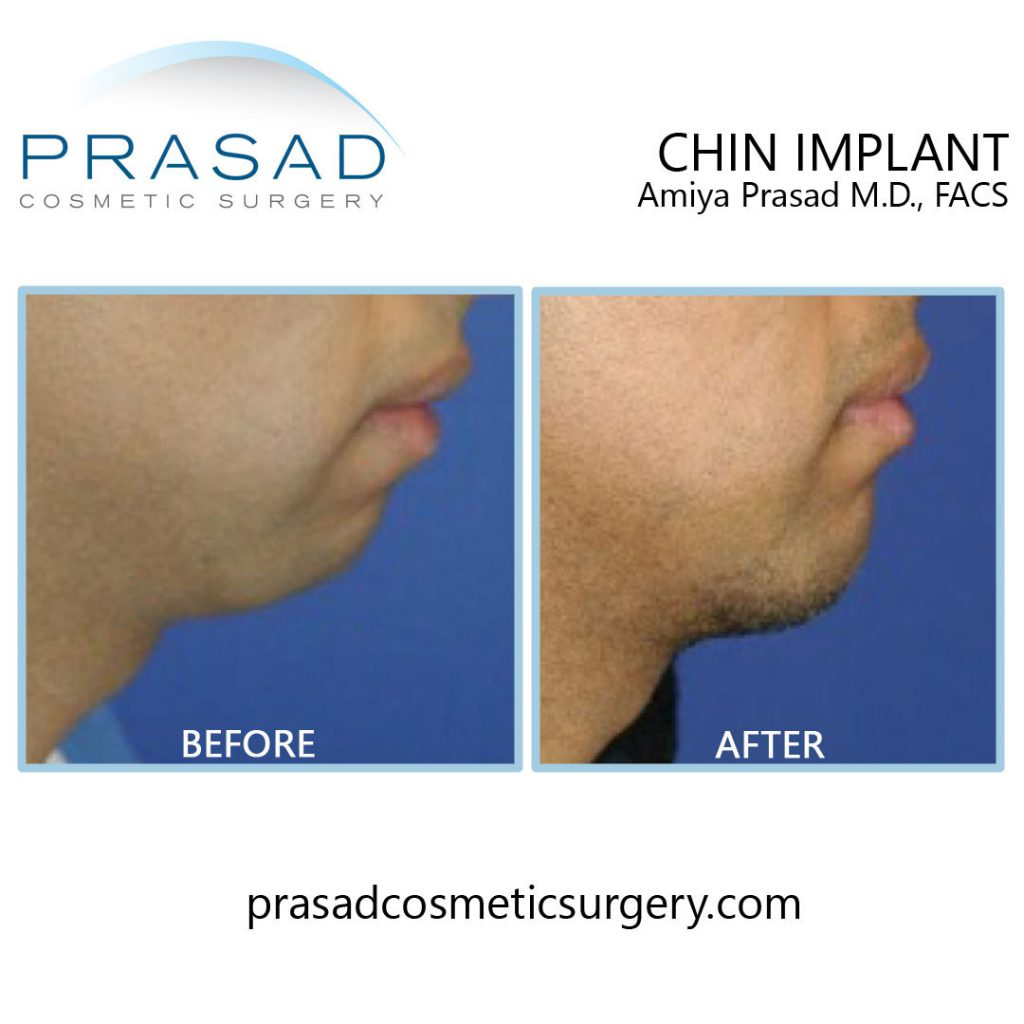 chin implant in male before and after surgery by Dr Amiya Prasad