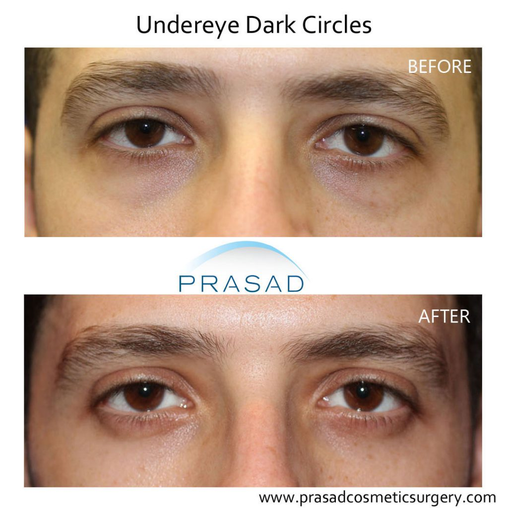 PRP treatment for dark under eye circles before and after results on male patient