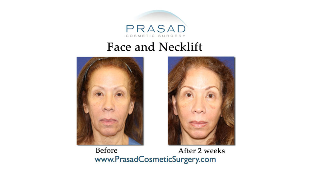 before and after deep plane face and neck lift