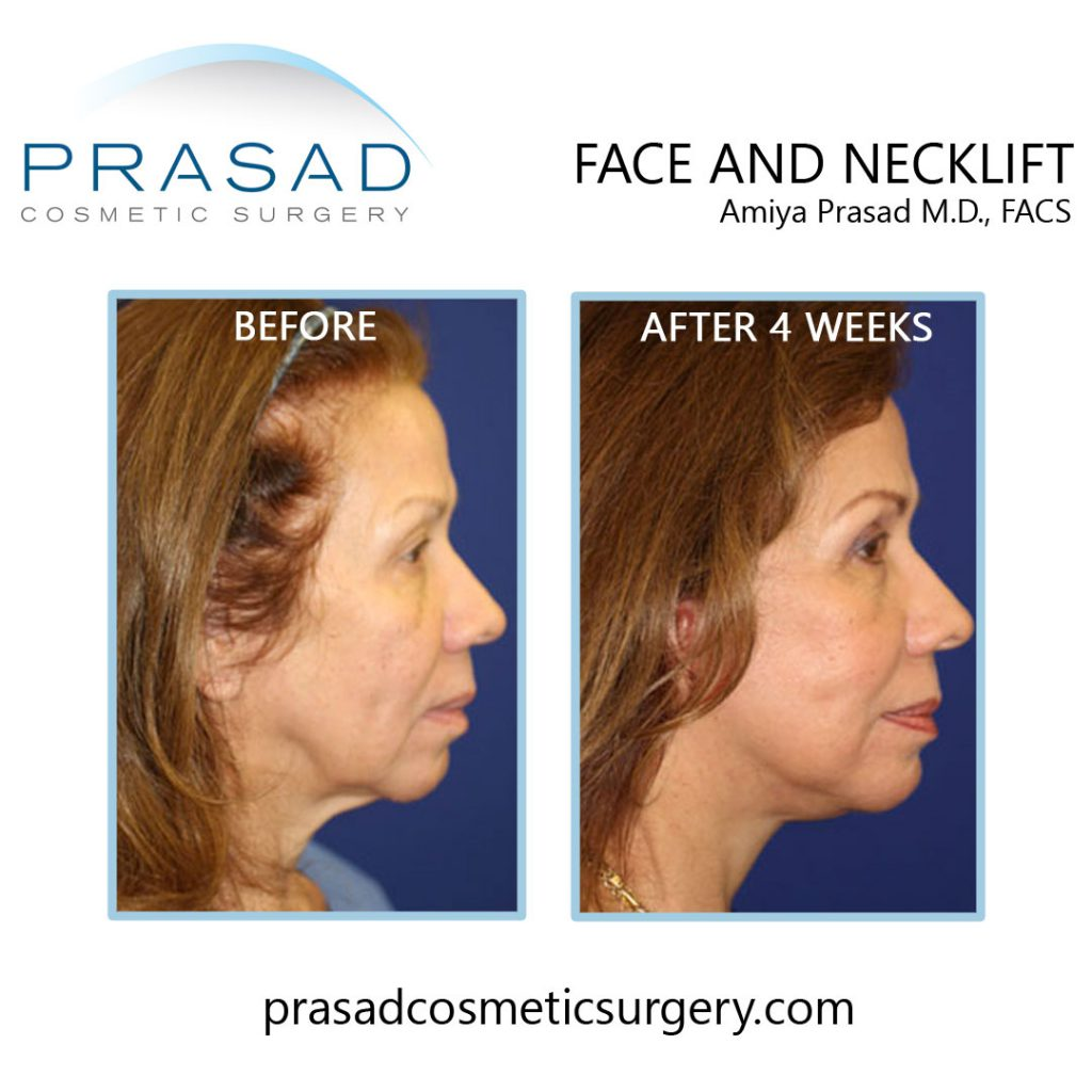 deep plane face and necklift patient before and after 4 weeks recovery - patient side view