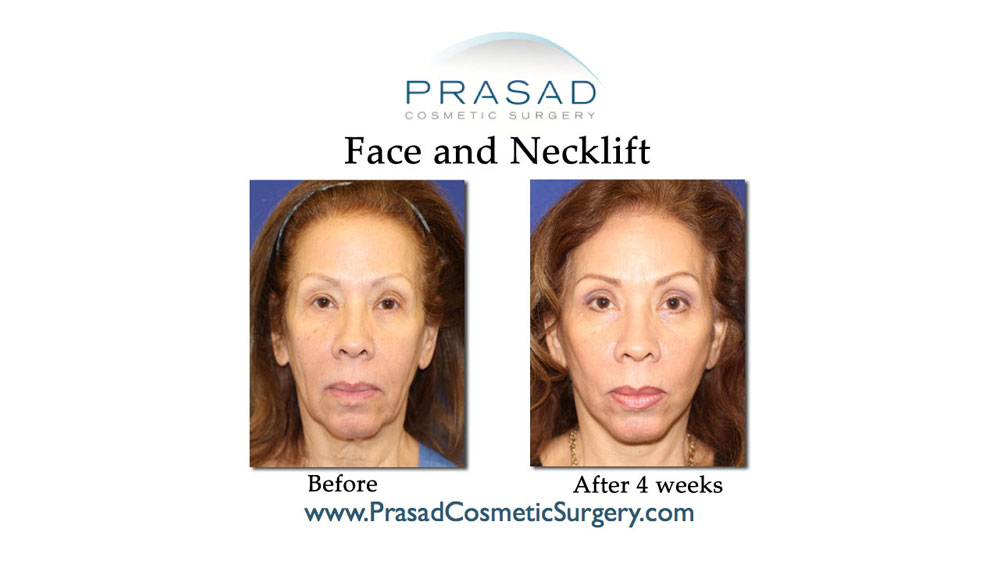 deep plane face and neck lift patient before and 4 weeks after surgery