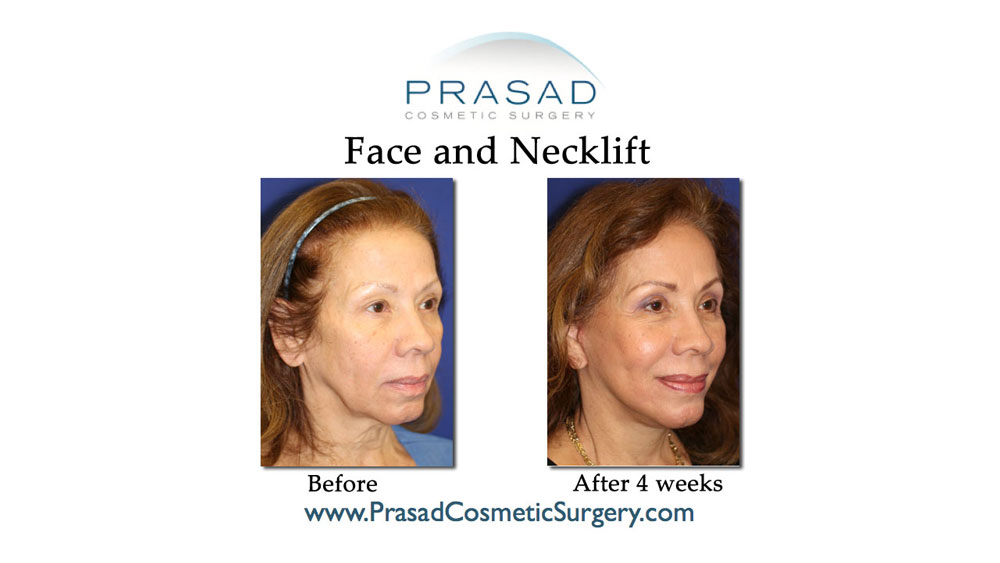 deep plane face and neck lift patient before and after 4 weeks recovery