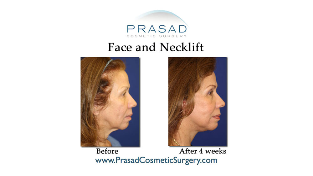 deep plane face and necklift patient before and after 4 weeks recovery.