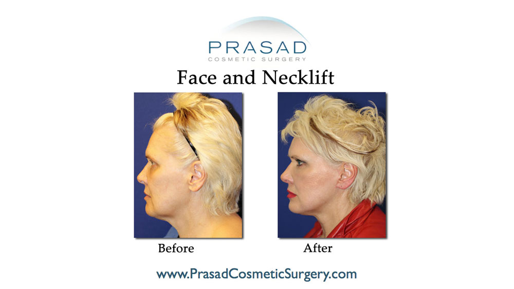 deep plane facelift patient before and after surgery - left profile view