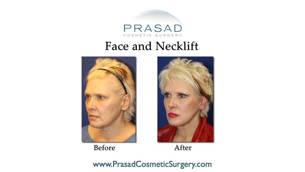 deep plane facelift patient before and after surgery results - three-quarter view