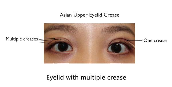 Female Asian with multiple eyelid crease