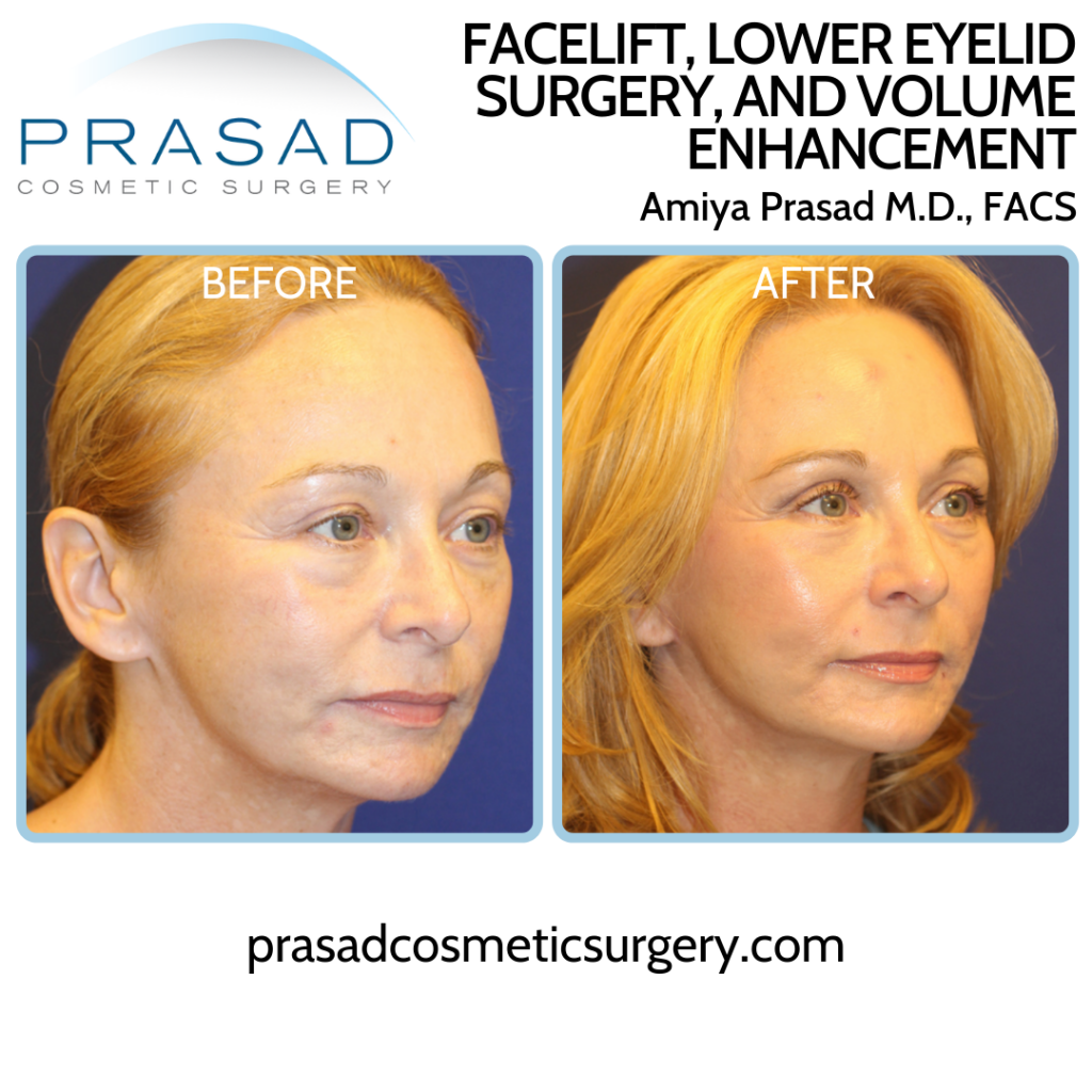 Facelift Patient Before and After in three-quarter view